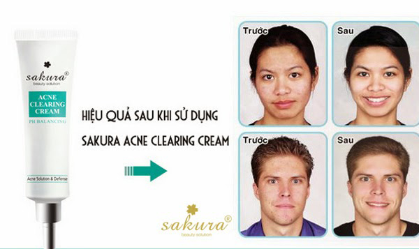 Kem-chua-mun-Sakura-Acne-Clearing-Cream-4