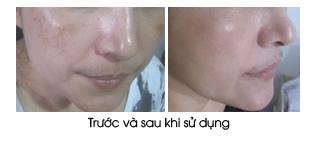 kem-tri-nam-duong-trang-da-ban-dem-sakura-spots-care-whitening-night-cream-b